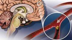 Атеросклероз судин головного мозку симптоми і лікування
