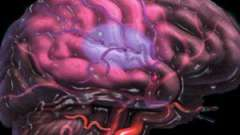 Церебральний атеросклероз судин головного мозку