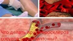 Що робити при атеросклероз судин ніг, симптоми?