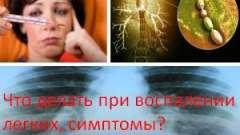 Що робити при запаленні легенів, симптоми?