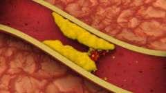 Як лікувати атеросклероз нижніх кінцівок