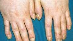 Як лікувати псоріаз нігтів