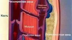 Компресійну білизну при варикозному дерматиті