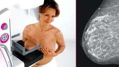 Мамографія молочної залози