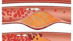 Облітеруючий атеросклероз артерій нижніх кінцівок