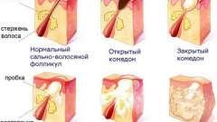 Чому з`являються прищі на ногах і як їх лікувати?