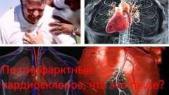 Постінфарктний кардіосклероз, що це таке?