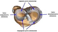 Пошкодження меніска колінного суглоба і їх лікування