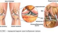 Причини симптоми і лікування нестабільності колінного суглоба