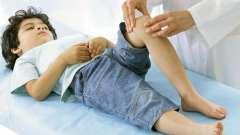 Причини виникнення алергії на ногах