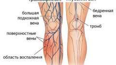 Застосування гірудотерапії при тромбофлебіті нижніх кінцівок