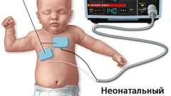 Синдром раптової смерті у дітей