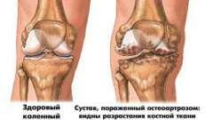 Специфіка остеопорозу колінного суглоба: симптоми і лікування