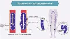 Варикоз: чим загрожує розширення вен на ногах