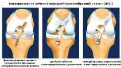 Виконання пластики передньої хрестоподібної зв`язки колінного суглоба
